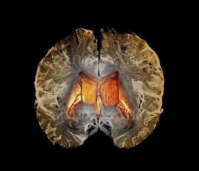 Human brain ventricles. Colour・・・