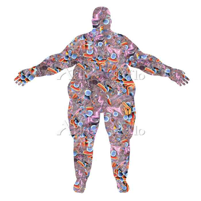 Human microbiome in an obese p・・・