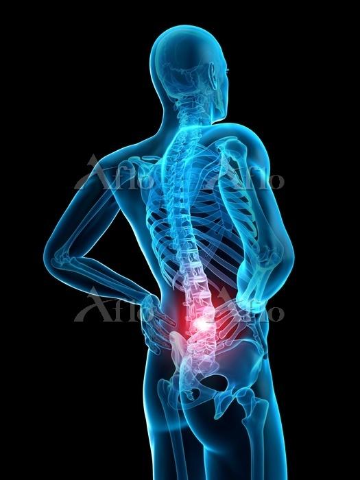 CG 人体 背中と背骨の痛み