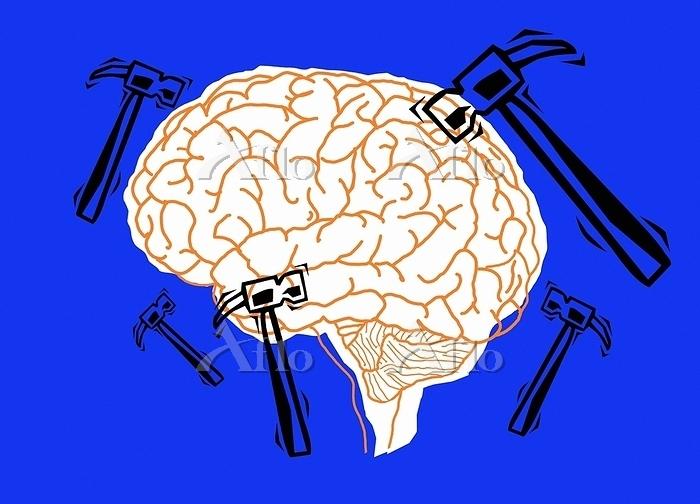 Migraine, conceptual illustrat・・・