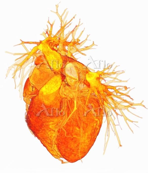 Human heart, 3D coloured compu・・・