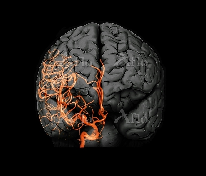 Brain aneurysm. 3D computed to・・・