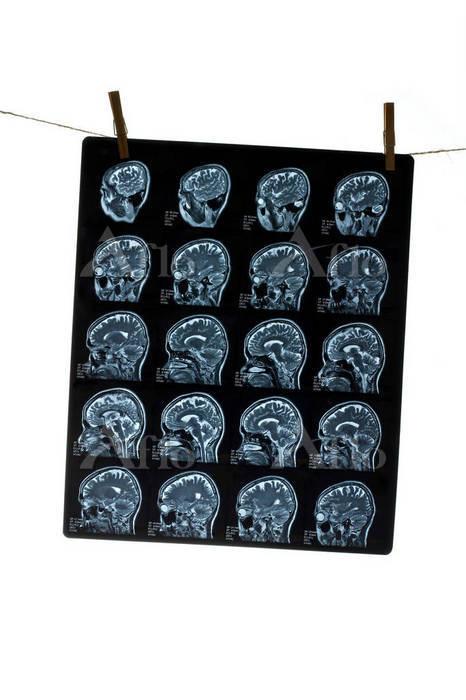 MRI scan of human head hanging・・・