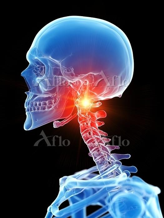 Neck pain, conceptual computer・・・