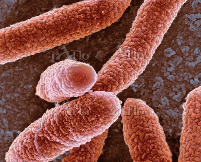 E. coli bacteria, SEM, Coloure・・・