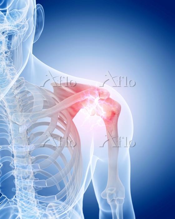 Human shoulder pain, illustrat・・・