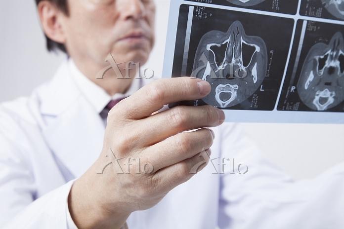 レントゲン写真を見るベテラン医師